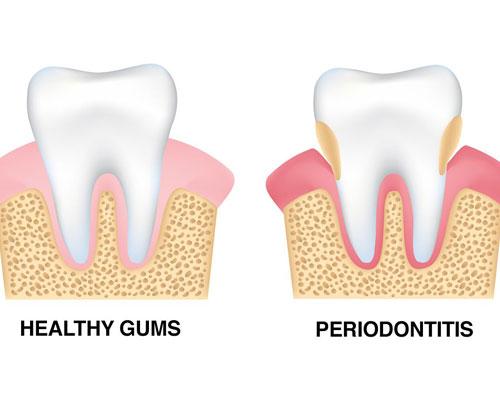 gum disease service