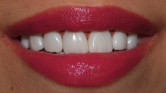 oakville veneer dentist