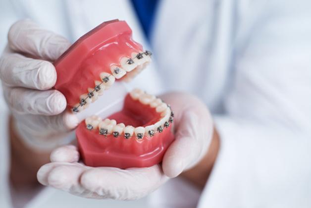 Top Benefits of Orthodontics
