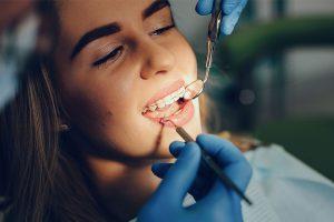 dental exams